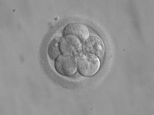 8-zelliger menschlicher Embryo an Tag 3 nach der Befruchtung. Foto: ekem, Wikimedia Commons