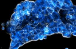 Abbildung 1: Die neue Strategie aktiviert den Wirkstoff (blau fluoreszierend) spezifisch im sauerstoffarmen Tumorgewebe (Copyright: Diana Groza)