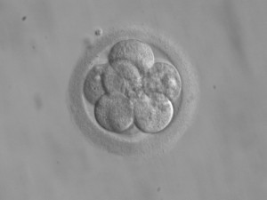 8-zelliger menschlicher Embryo an Tag 3 nach der Befruchtung (© ekem, Wikimedia Commons)