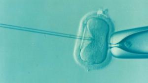 Injektion von Spermien in menschliche Eizelle (© Elena Kontogianni / Pixabay CC0)