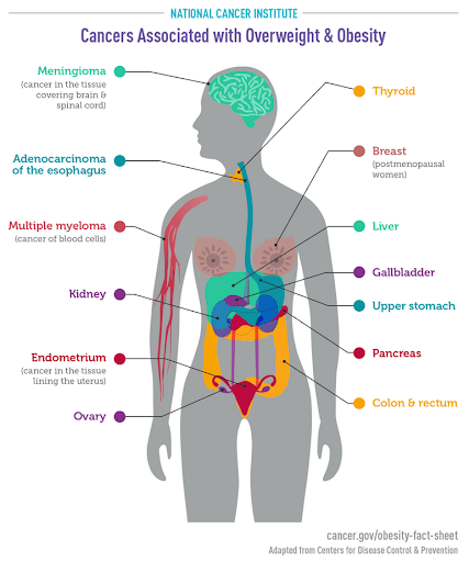 Active aging: cancers associated with overweight and obesity